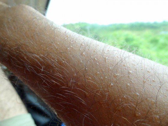 Beads Of Sweat On My Arm