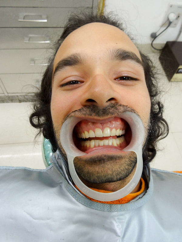 Forcing Myself To Smile (At The Dentist)