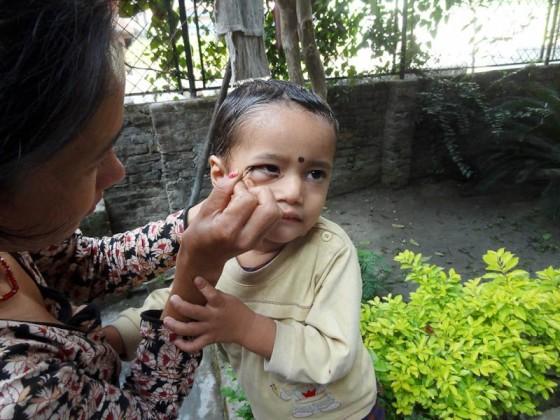 Applying Kajal To A Boy's Eyes In Nepal